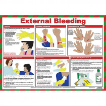 First Aid for External Bleeding Poster